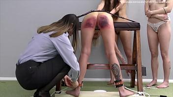 Severe corporal punishment.
